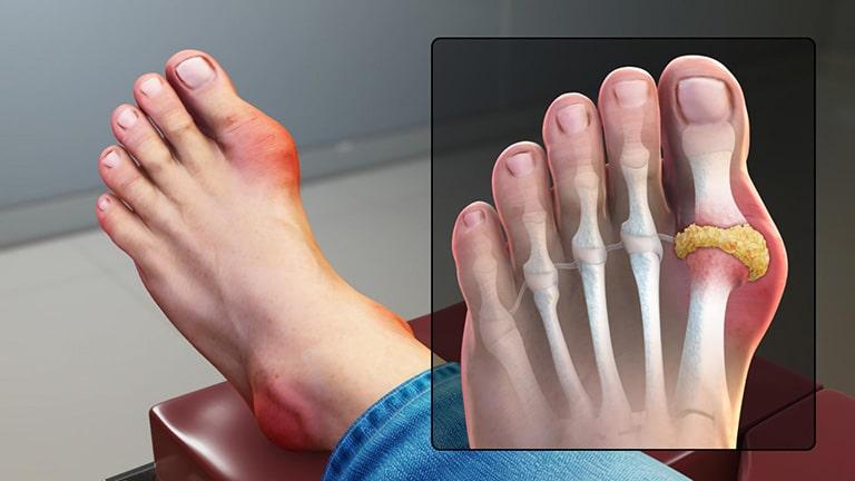 Bệnh gout gây viêm sưng, ảnh hưởng lớn đến sức khỏe nếu không điều trị kịp thời