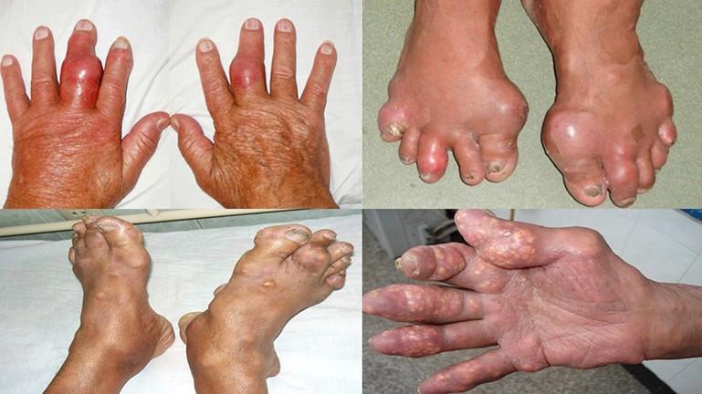 Biến chứng nguy hiểm bệnh gout