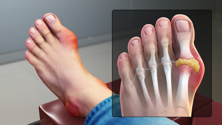 Bệnh gout gây sưng tấy ngón chân