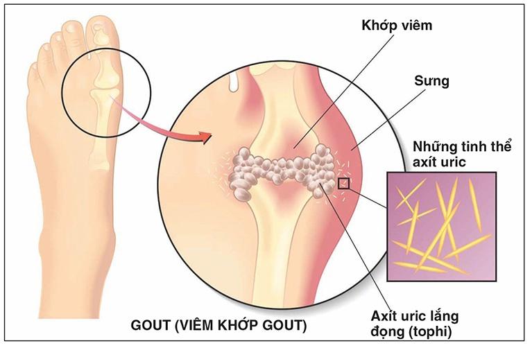 Gout là gì?