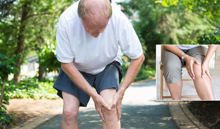 Thoái hóa khớp là tình trạng tổn thương sụn khớp và xương dưới sụn