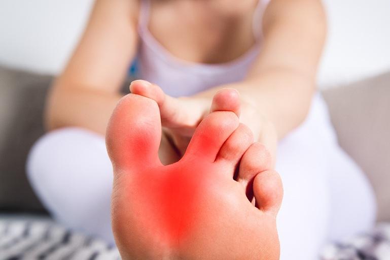 Bệnh gout có liên quan chặt chẽ tới chế độ ăn uống