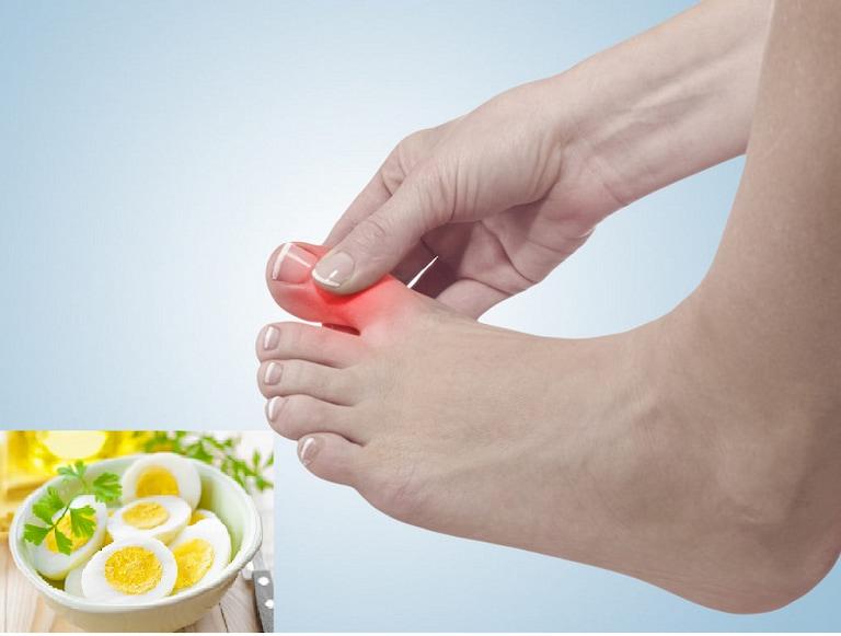 Bệnh gút có được ăn trứng không?