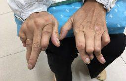 Dấu hiệu bệnh gout ở tay