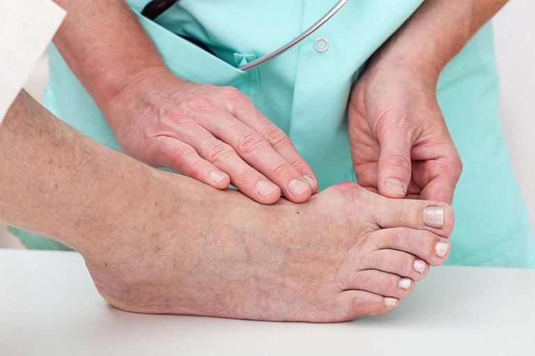 Dấu hiệu bệnh gout dễ nhận biết