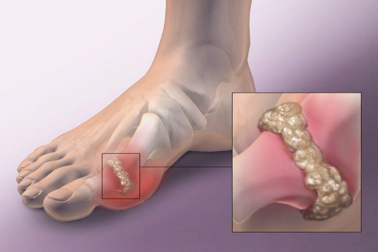 Sự lắng đọng của tinh thể acid uric gây ra bệnh gout
